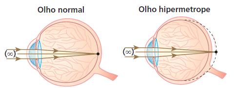 Figura 01. Corte do olho humano.
