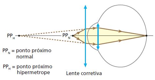 Figura 02. Correção da hipermetropia com lentes convergentes.