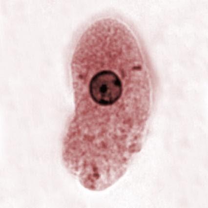 Representação do protozoário Entamoeba histolytica.
