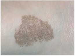 Tinha, Caspa ou Dermatofitose