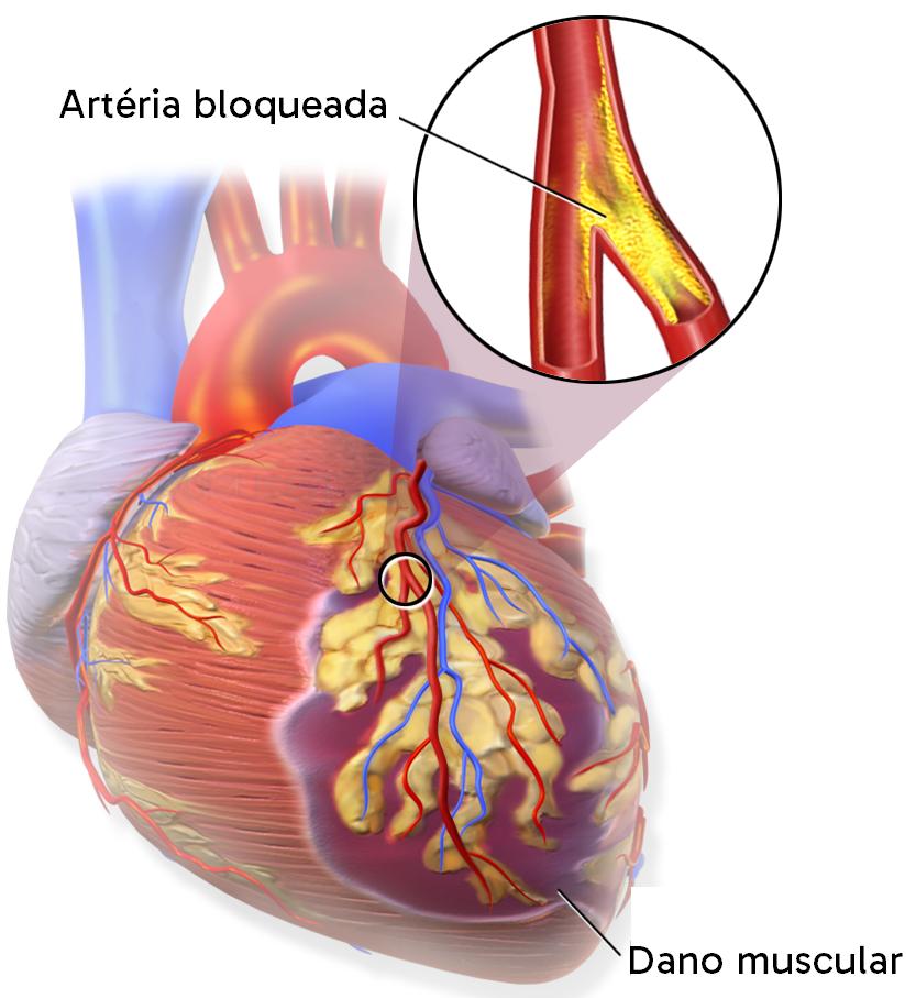 Esquema de um infarto, ocorrendo pelo bloqueio da artéria por aterosclerose.